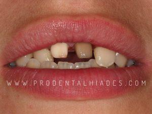 preparación de dientes 11 y 21